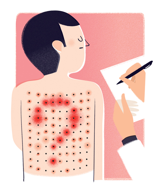 Editorial illustration on allergic reaction and prick test